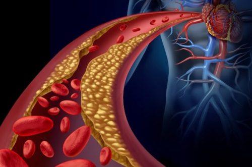 Arteria in più che cresce nelle nostre braccia sarebbe la prova che ci stiamo evolvendo